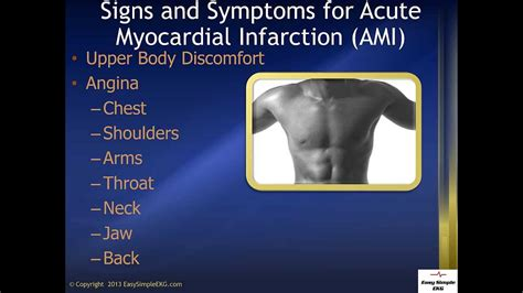 Signs and Symptoms for AMI (Acute Myocardial Infarction