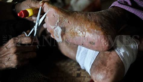 Leprosy patients recover but face social stigma   The